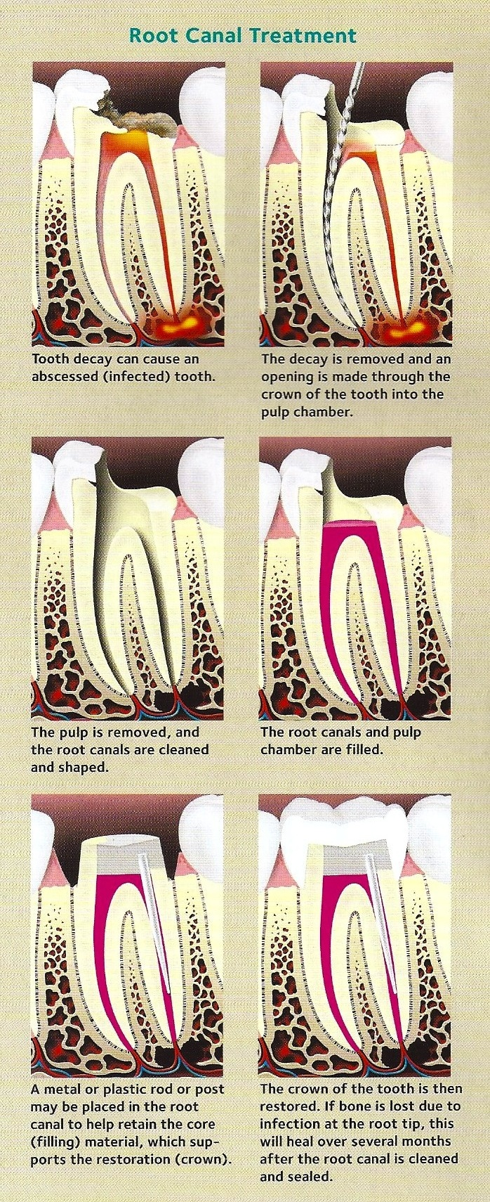Staton-Root-Canal-Image 2